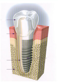 Dental Implant Alexandria VA Dentistry