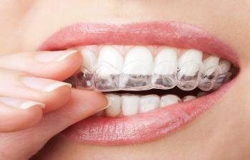 Alexandria VA Orthodontist