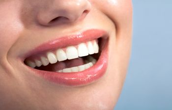 Woman Smiling After Teeth Whitening from Green Dental of Alexandria VA