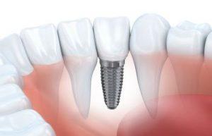 Dental Implants Alexandria VA