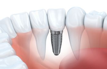 Dental Implants Alexandria VA