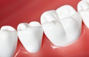 Healthy Teeth Alexandria VA